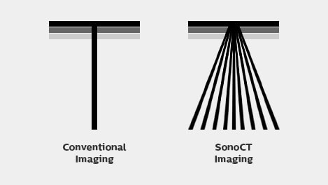 sonoct imaging diagram