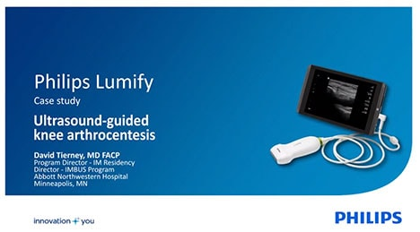 Lumify case study video thumbnail